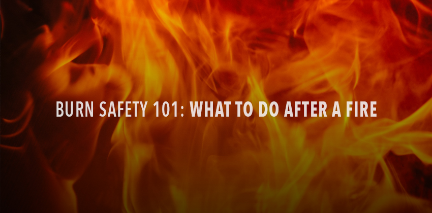 Burn Safety 101: What to do After a Fire